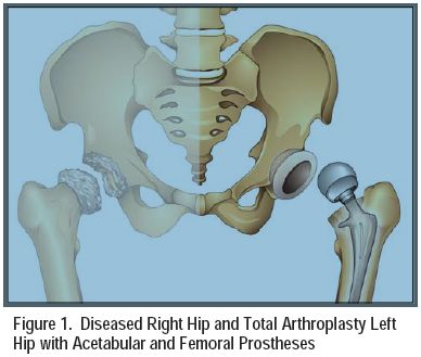 Figure 1. Diseased Right Hip and Total Arthroplasty Left Hip with Acetabular and Femoral Prostheses