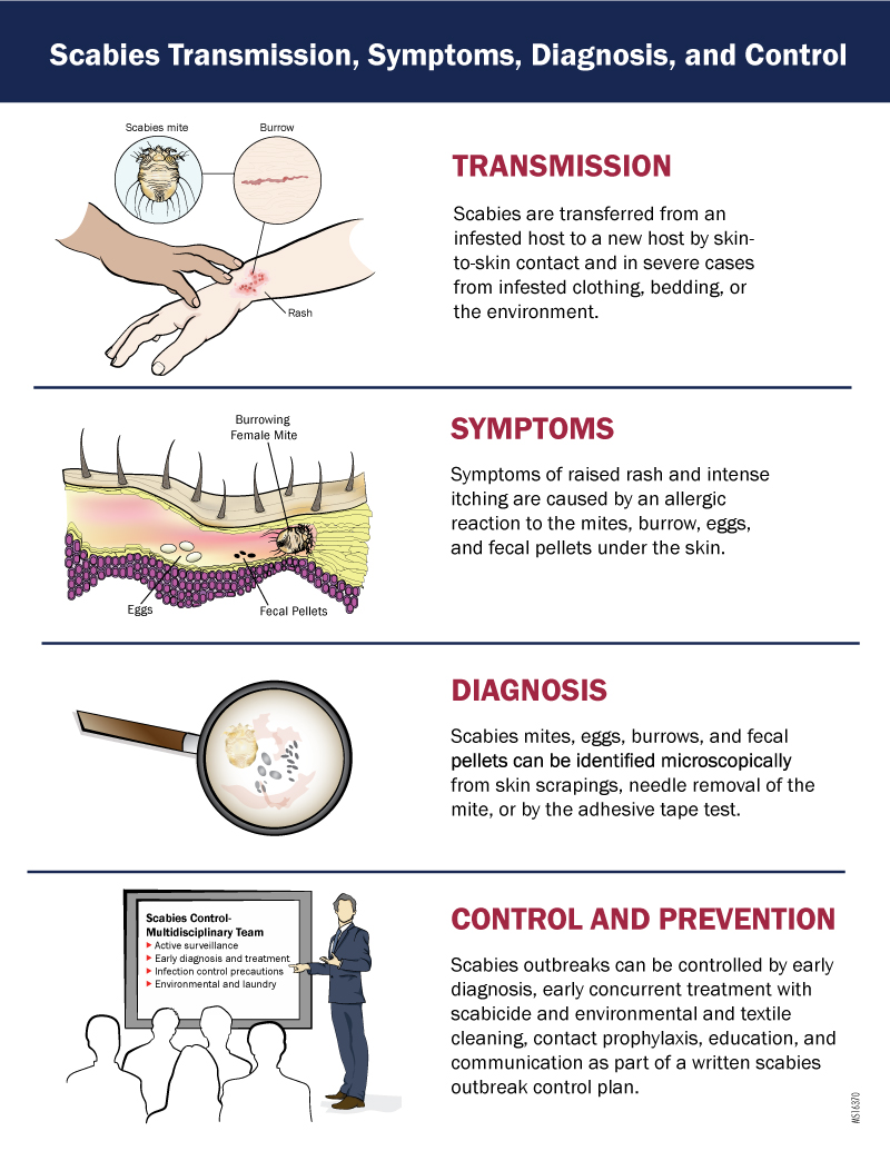 Scabies Transmission, Symptoms, Diagnosis, and Control