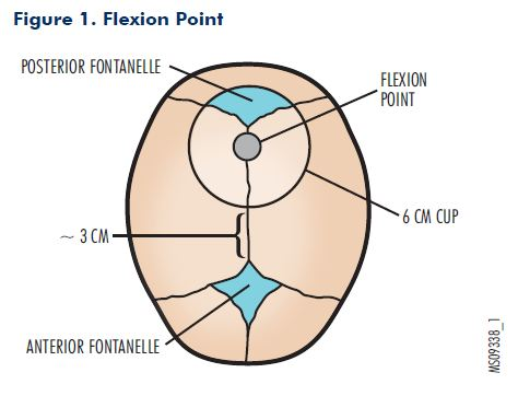 Figure 1. Flexion Point