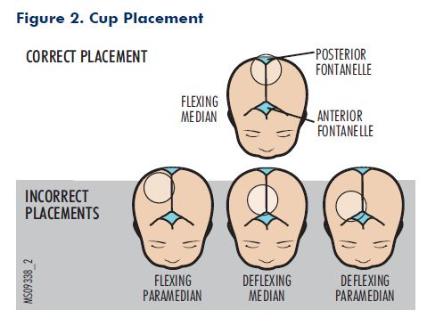 Figure 2. Cup Placement